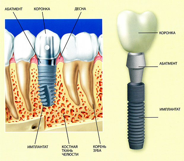 Этапы классической имплантации